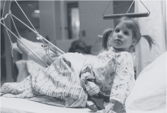 Bettina props herself up in a hospital bed after being hit by a car in 1970 at age 5